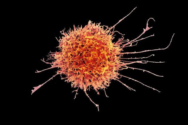 NK buňka lidského imunitního systému je schopná rozeznat virem napadenou nebo nádorovou buňku a zlikvidovat ji